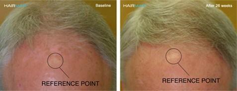 תוצאות שימוש בהיירמקס במחקר קליני למניעת נשירה והצמחת שיער
