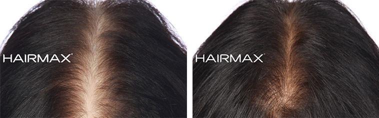 צמיחת שיער בנשים בעזרת היירמקס