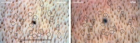 צילום מיקרוסקופי של תוצאות שימוש במכשיר היירמקס לעיבוי שיער ועצירת נשירה